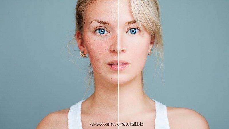 Cosmetici per acne ragazze